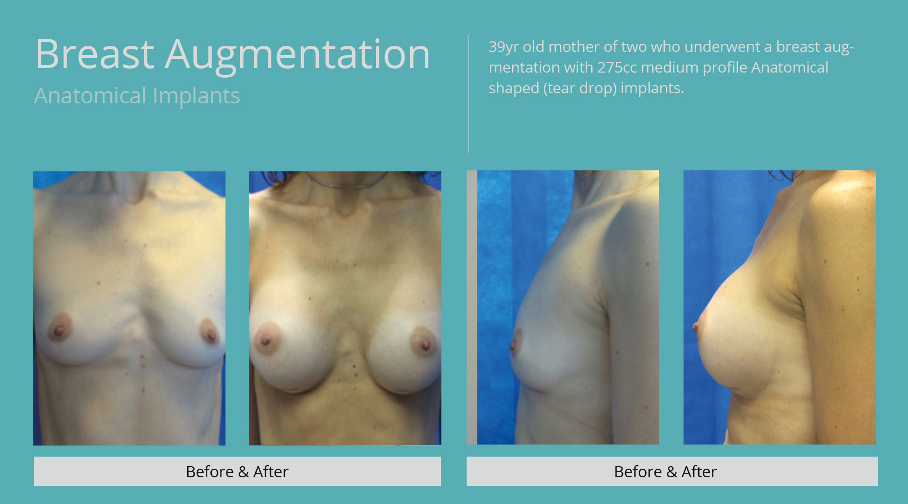 Breast-Augmentation-anatomical-10