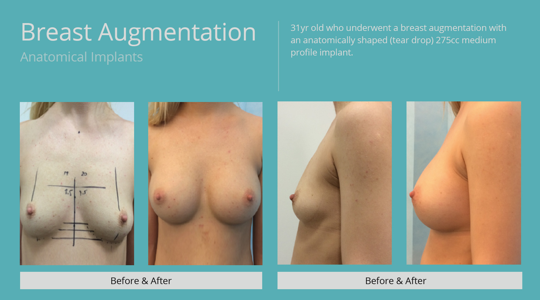 Breast-Augmentation-anatomical-11