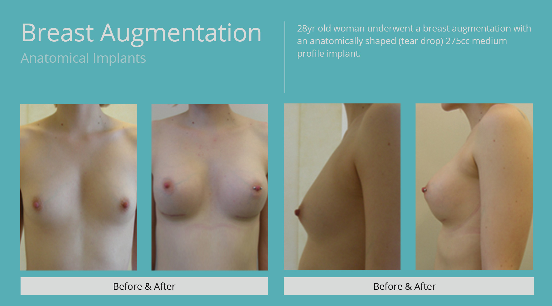 Breast-Augmentation-anatomical-12