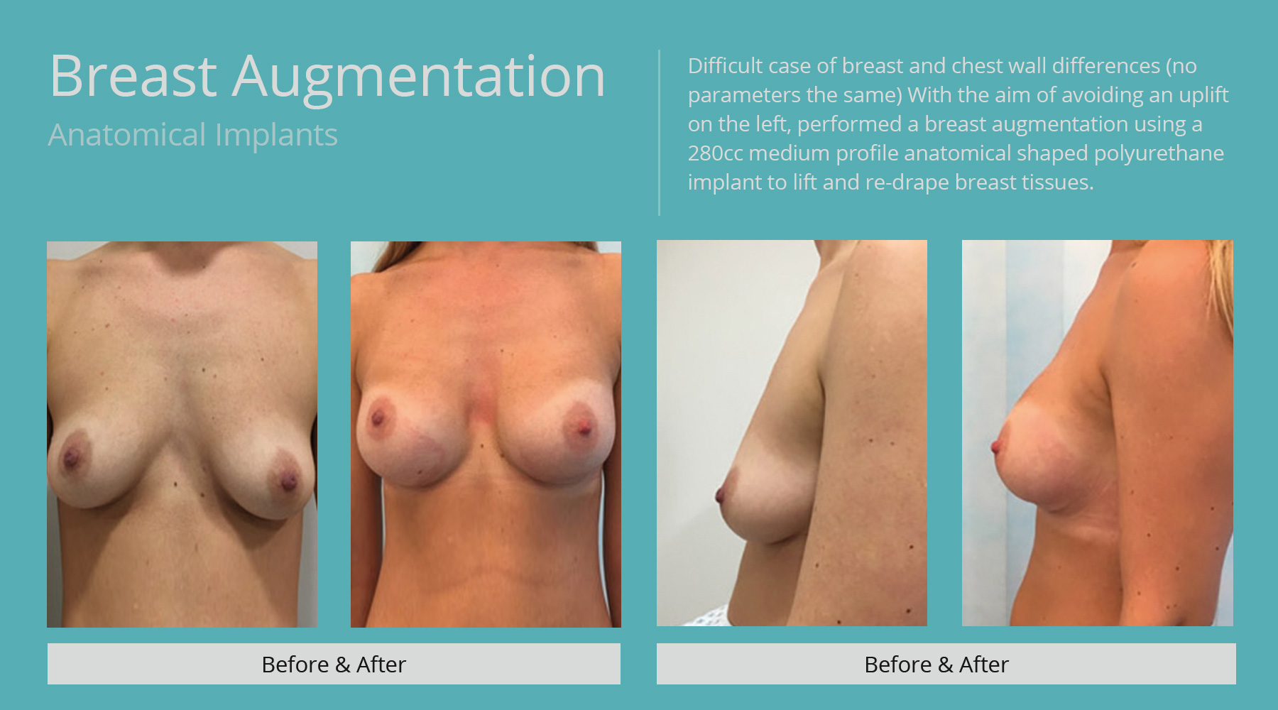 Breast-Augmentation-anatomical-13