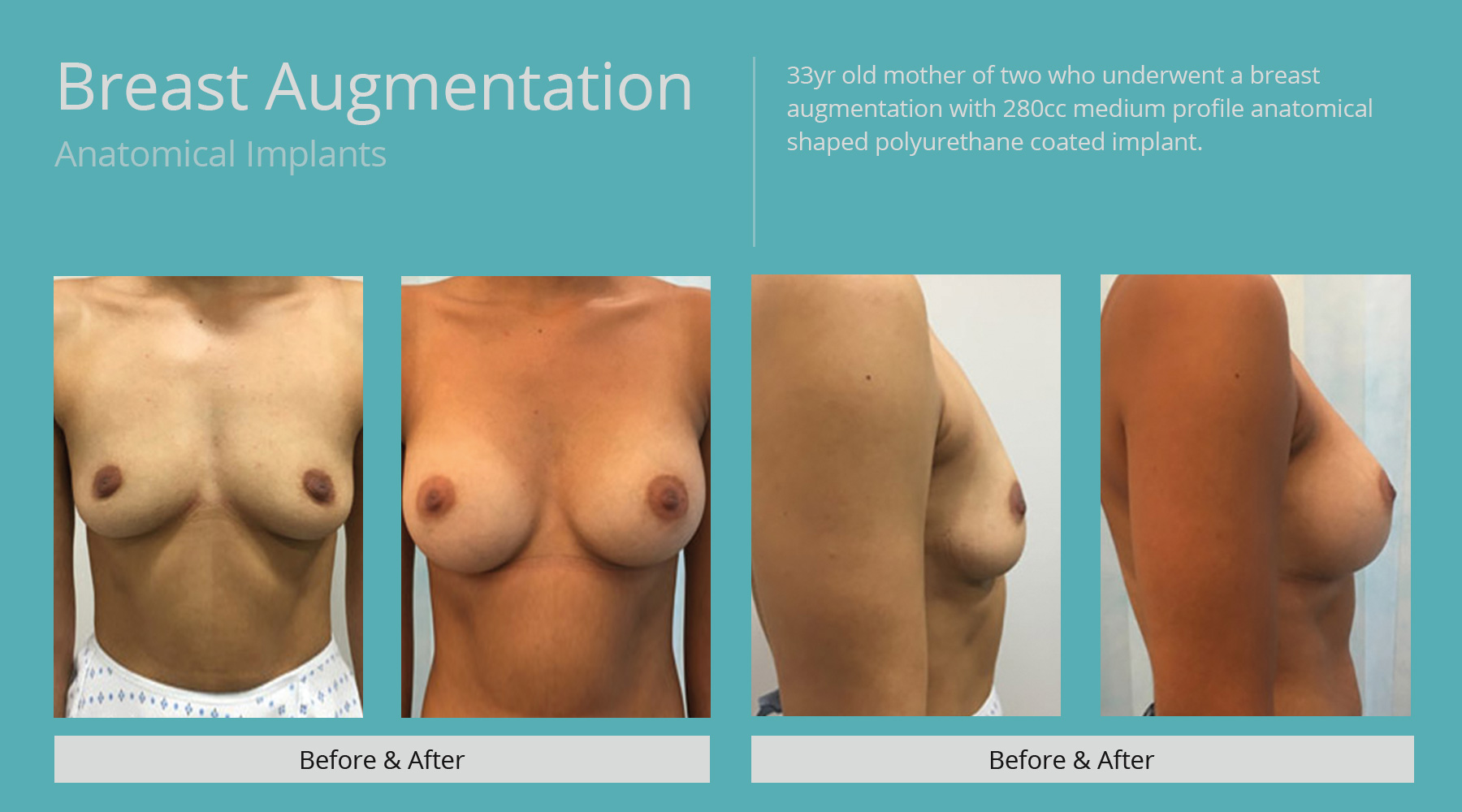 Breast-Augmentation-anatomical-14