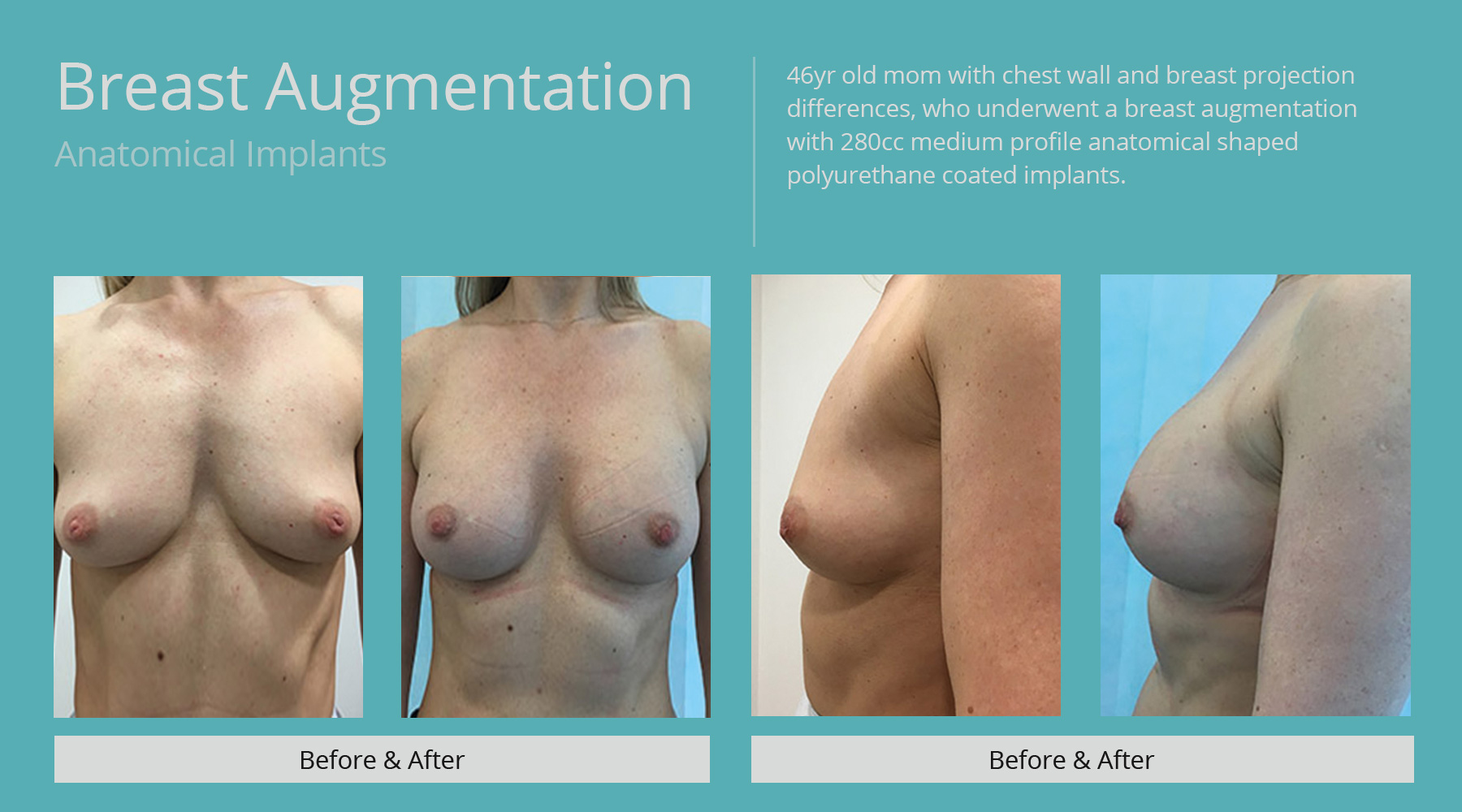 Breast-Augmentation-anatomical-15