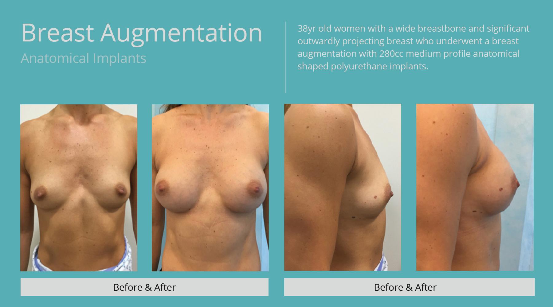 Breast-Augmentation-anatomical-16