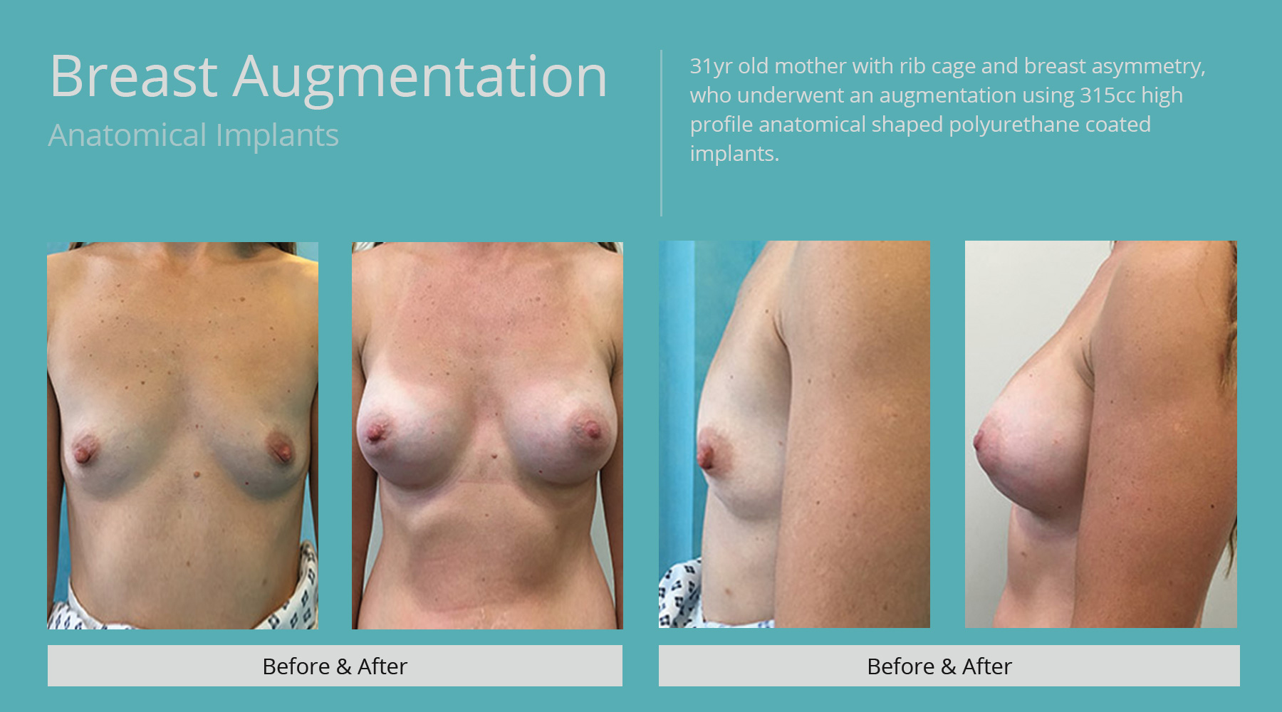 Breast-Augmentation-anatomical-17