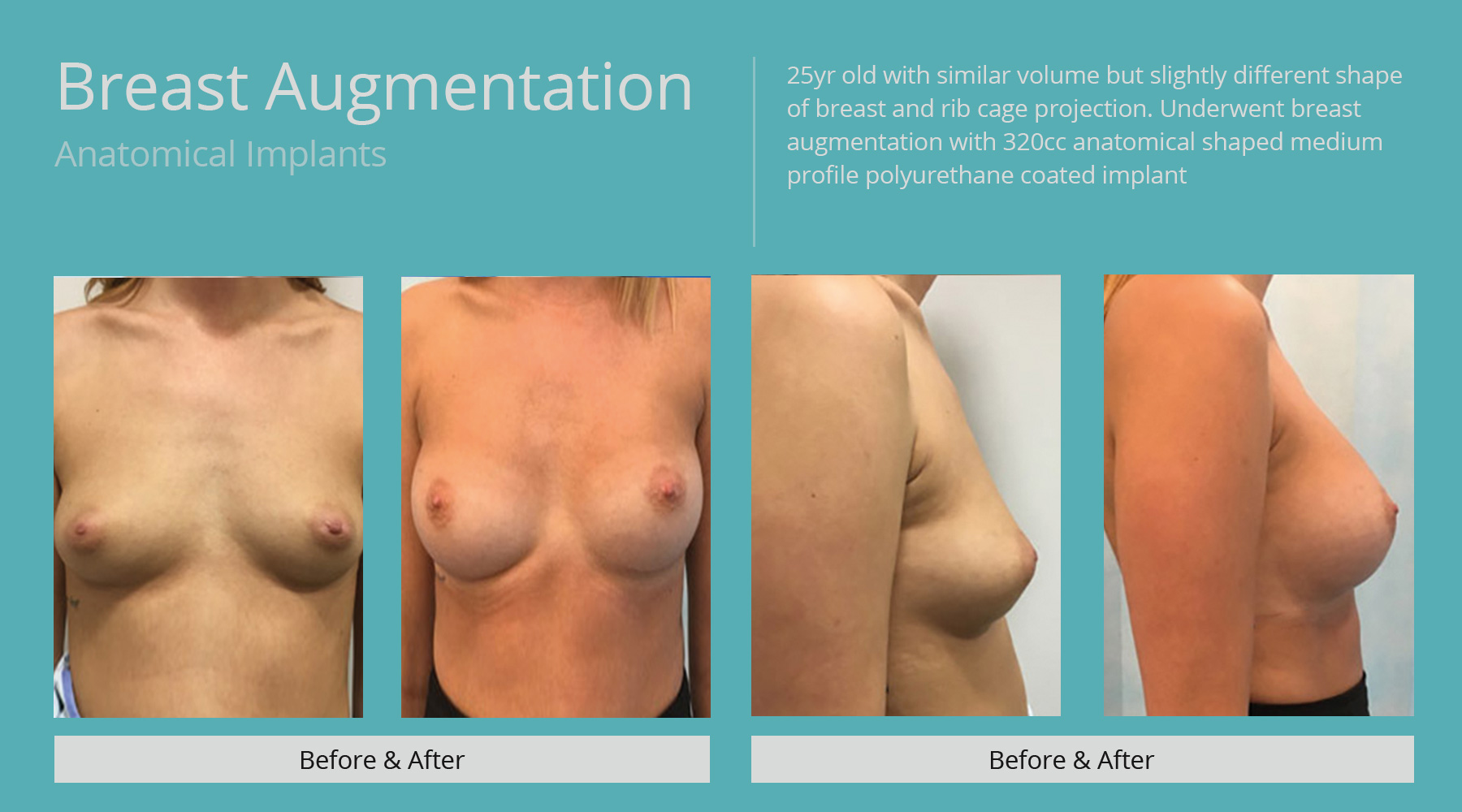 Breast-Augmentation-anatomical-19