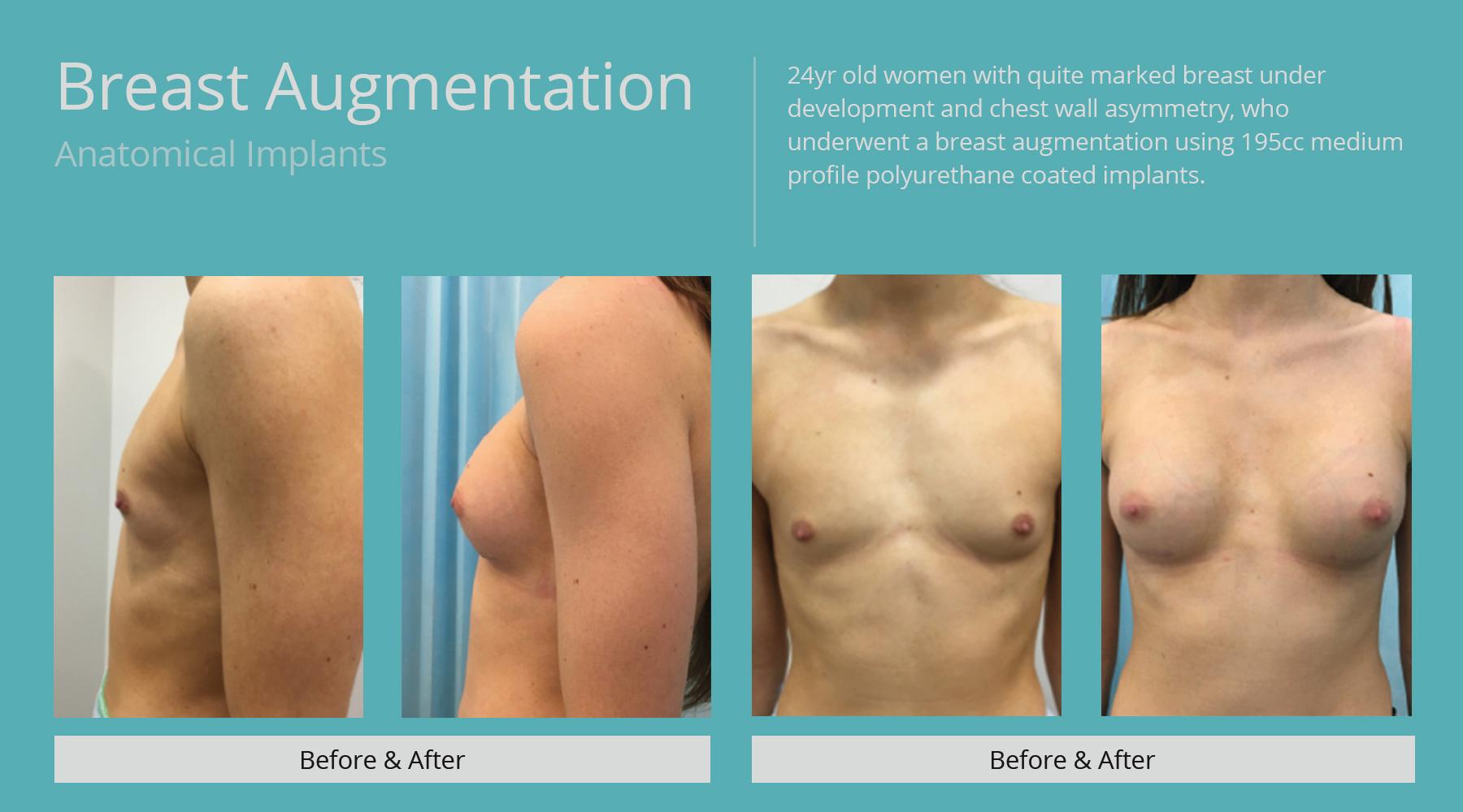 Breast-Augmentation-anatomical-2