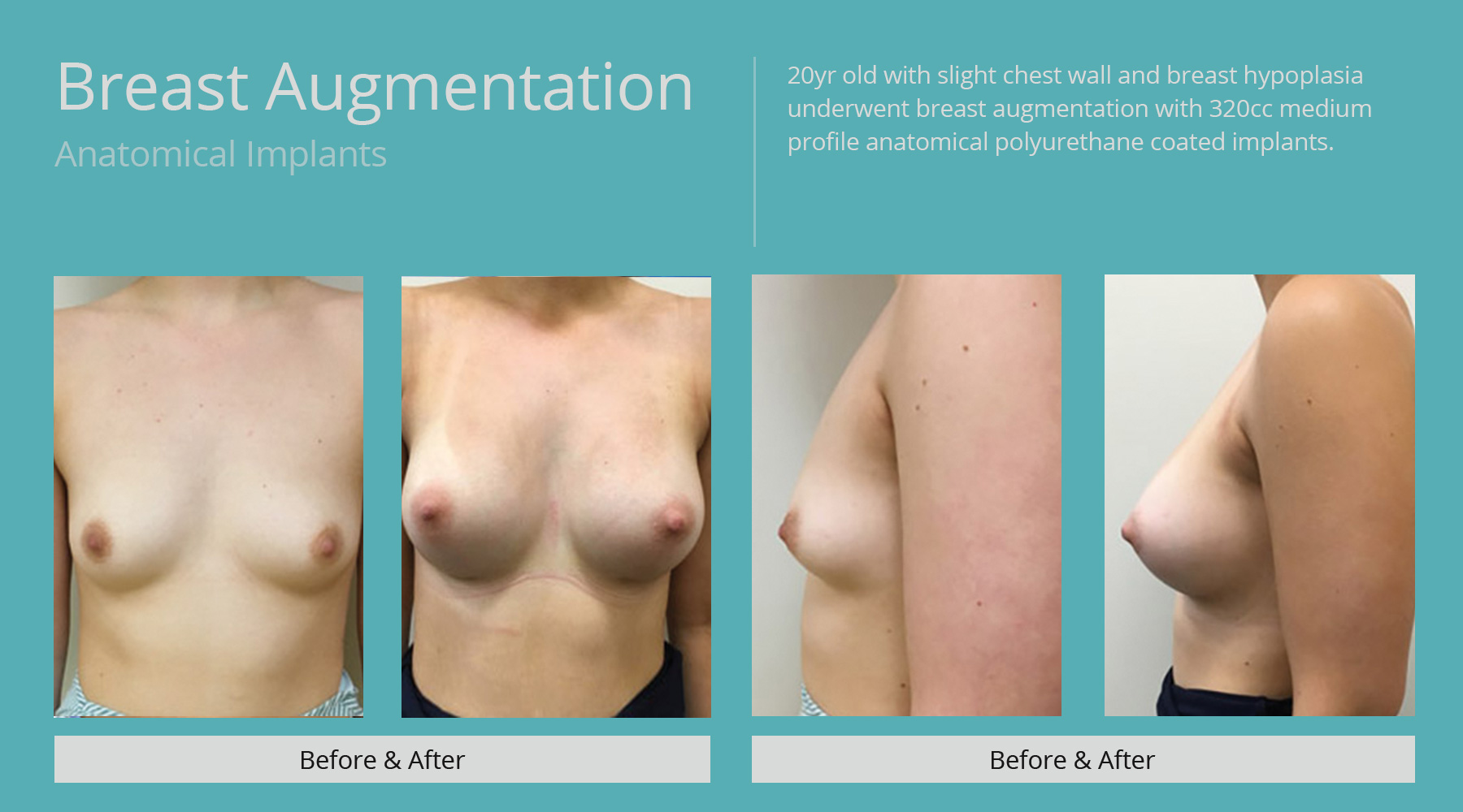 Breast-Augmentation-anatomical-20