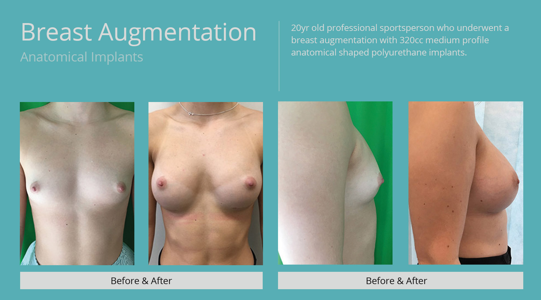 Breast-Augmentation-anatomical-24