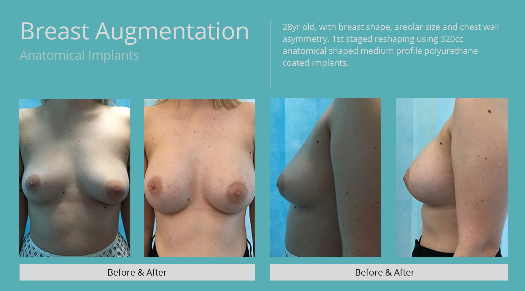 Breast-Augmentation-anatomical-25