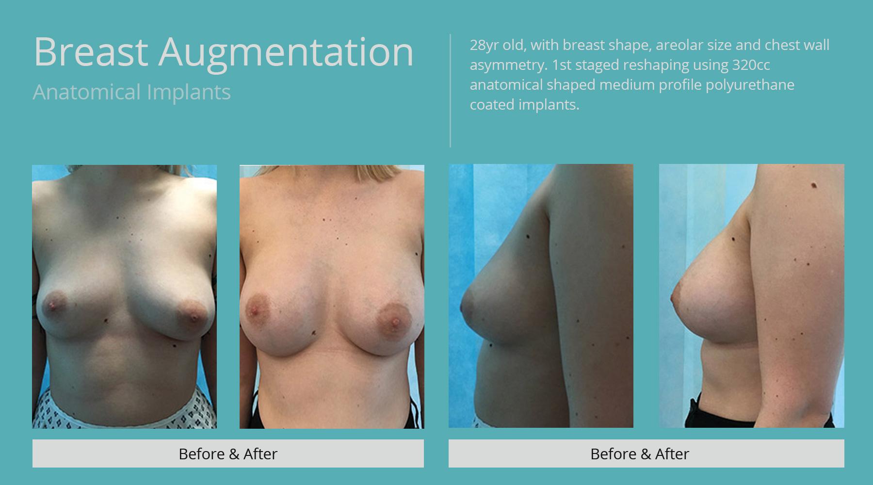 Breast-Augmentation-anatomical-25