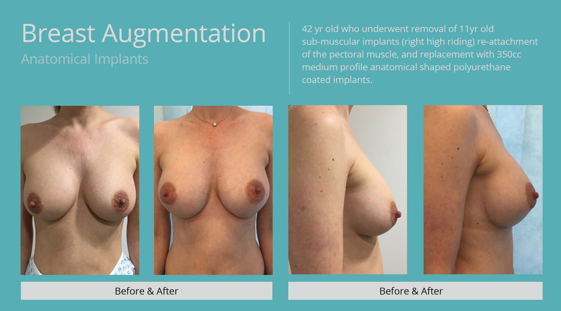 Breast-Augmentation-anatomical-27