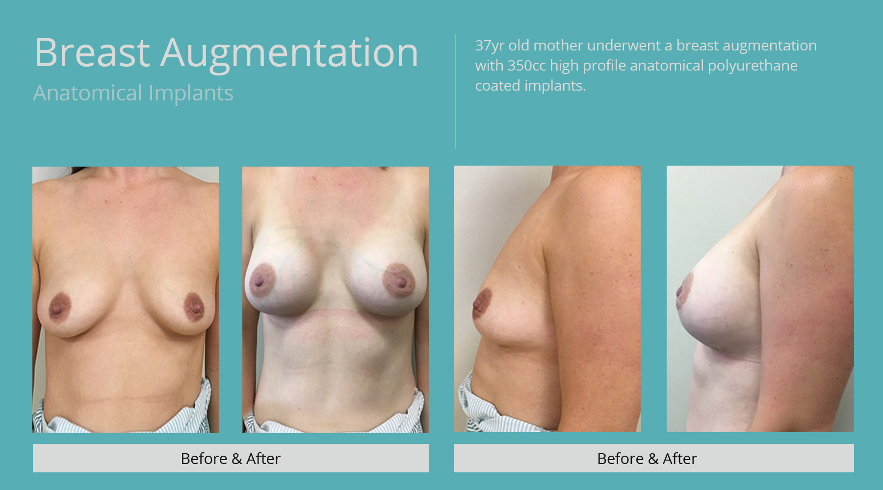 Breast-Augmentation-anatomical-28