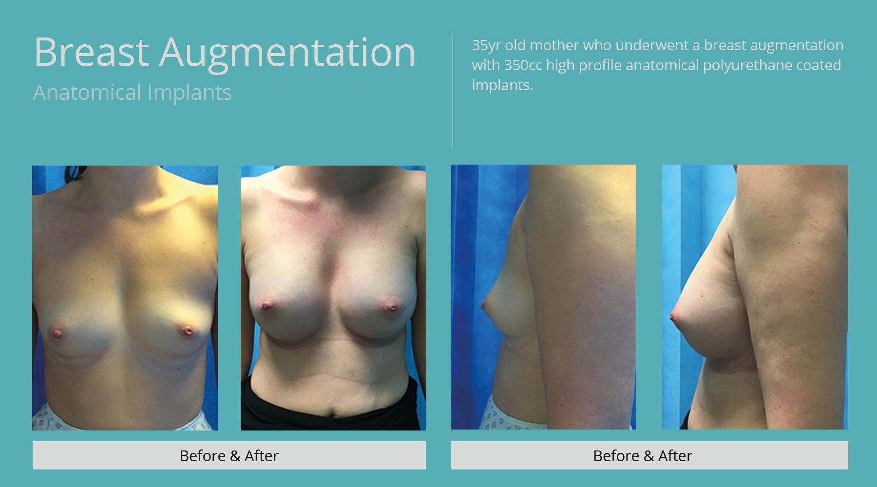 Breast-Augmentation-anatomical-29