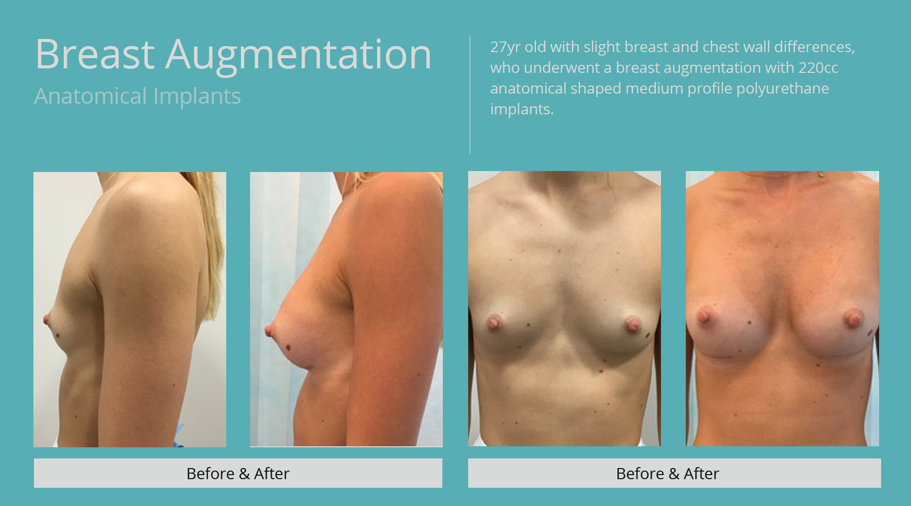Breast-Augmentation-anatomical-3