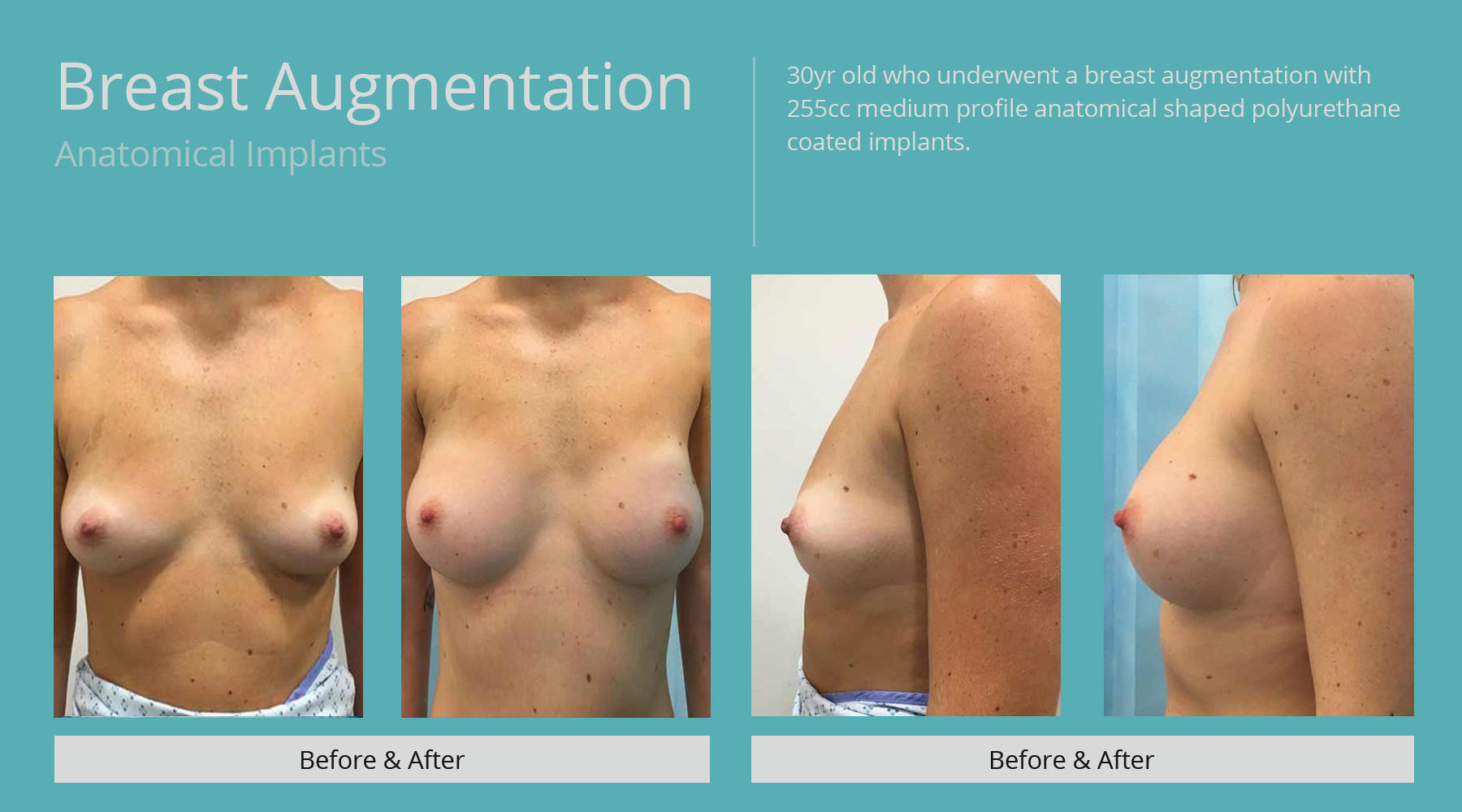 Breast-Augmentation-anatomical-31