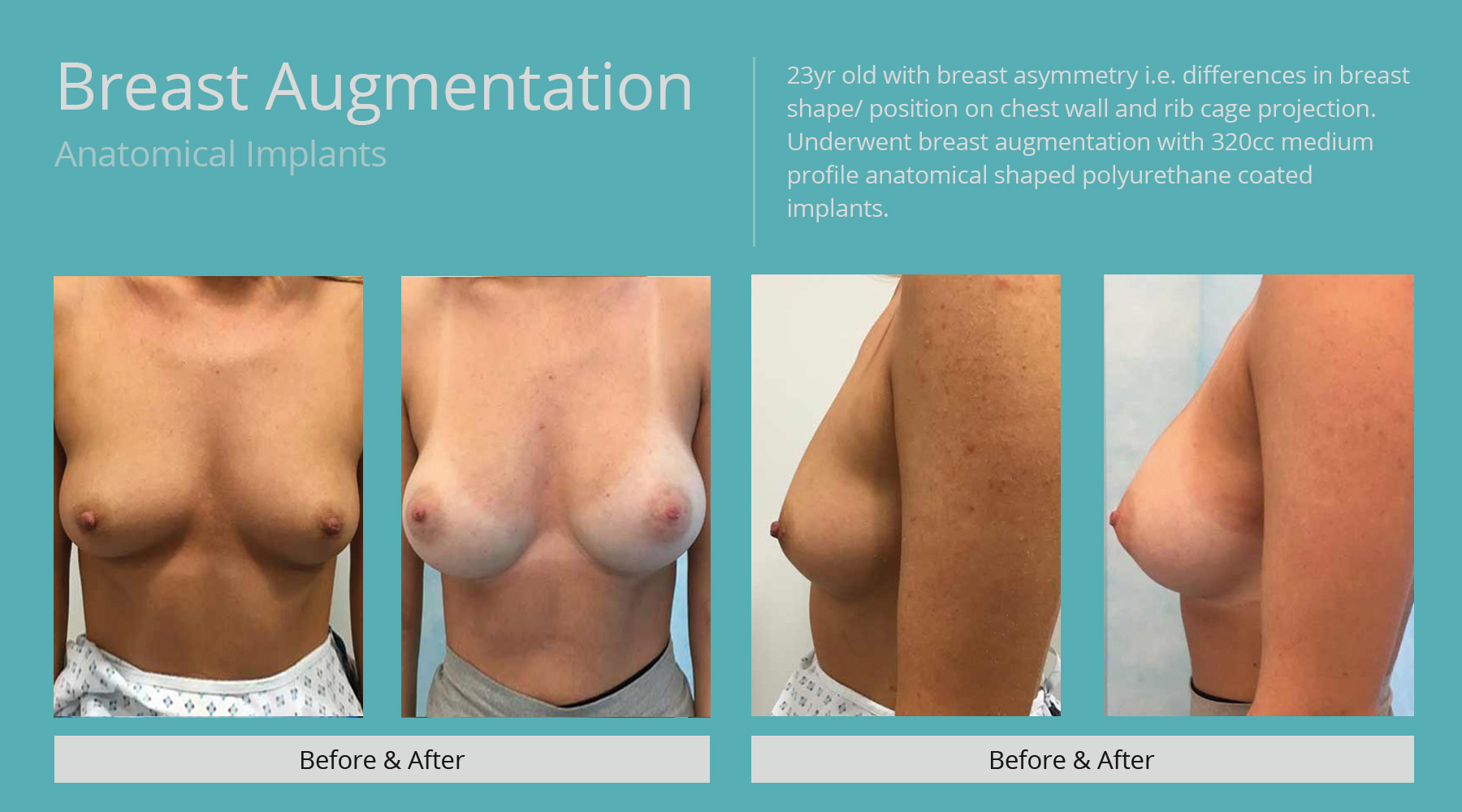 Breast-Augmentation-anatomical-32