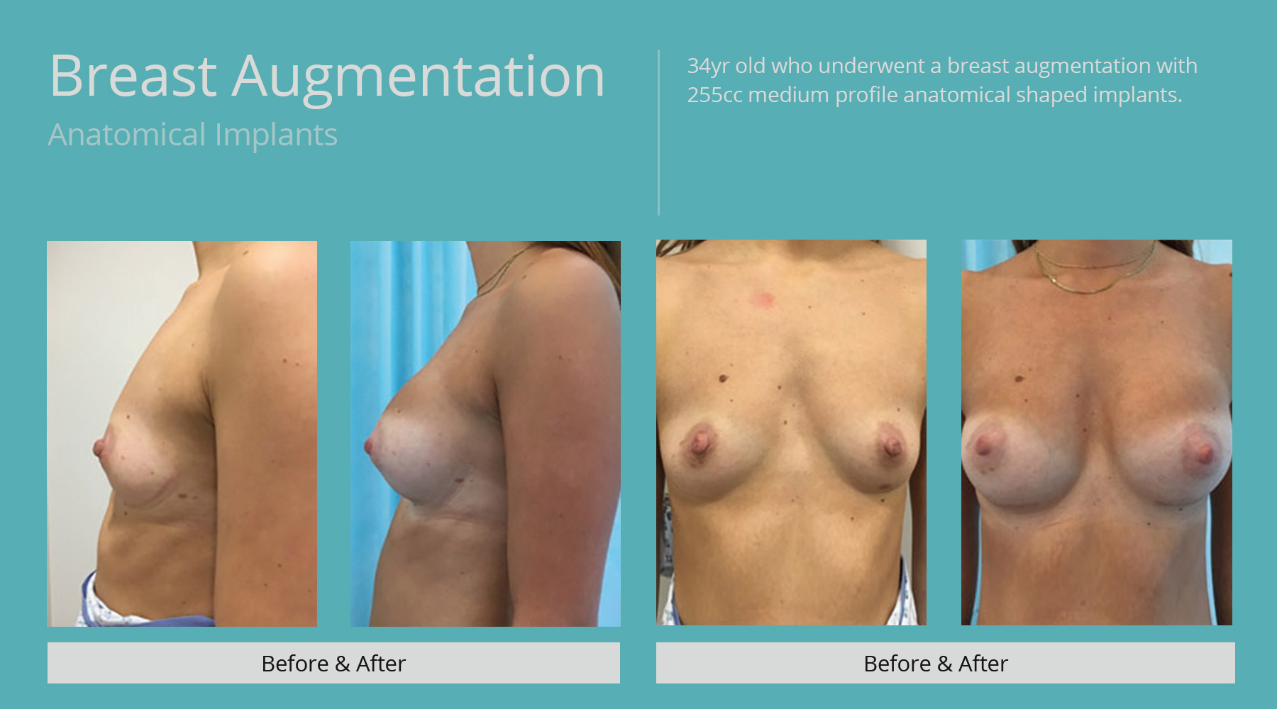 Breast-Augmentation-anatomical-4