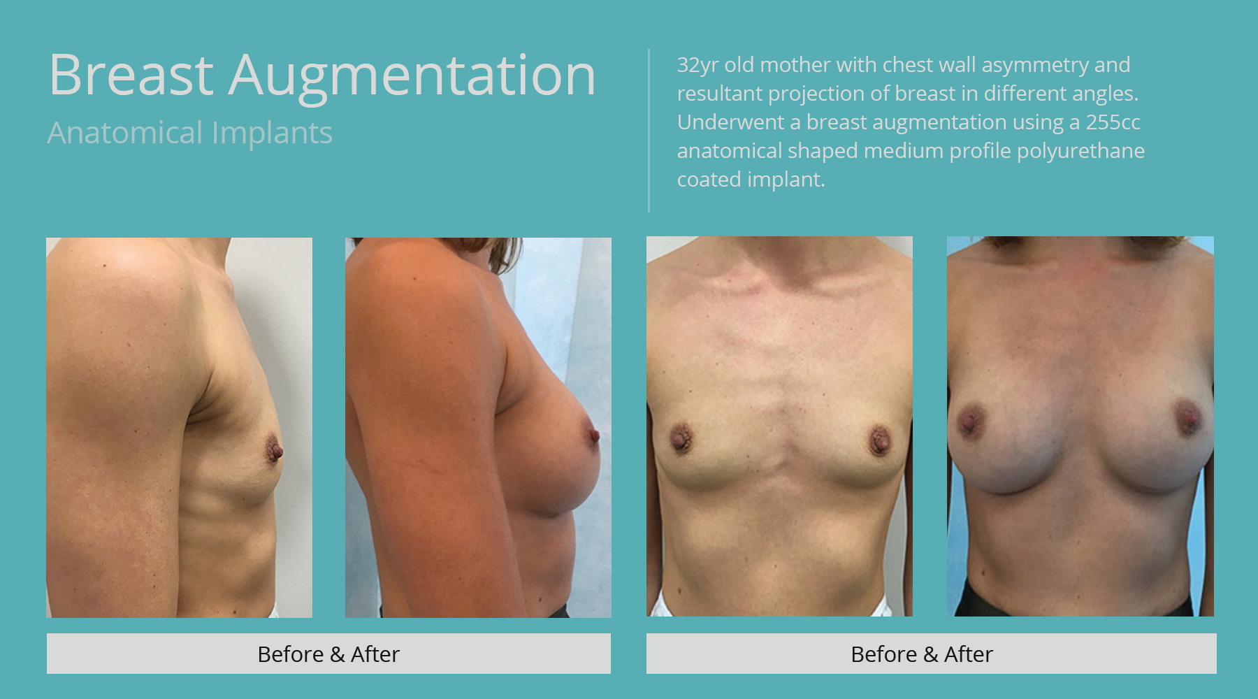 Breast-Augmentation-anatomical-5