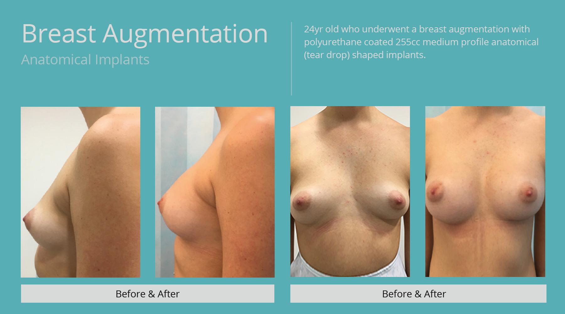 Breast-Augmentation-anatomical-6