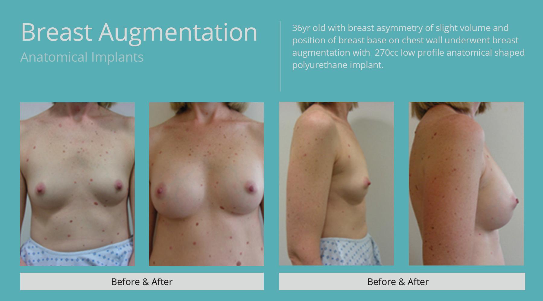 Breast-Augmentation-anatomical-9