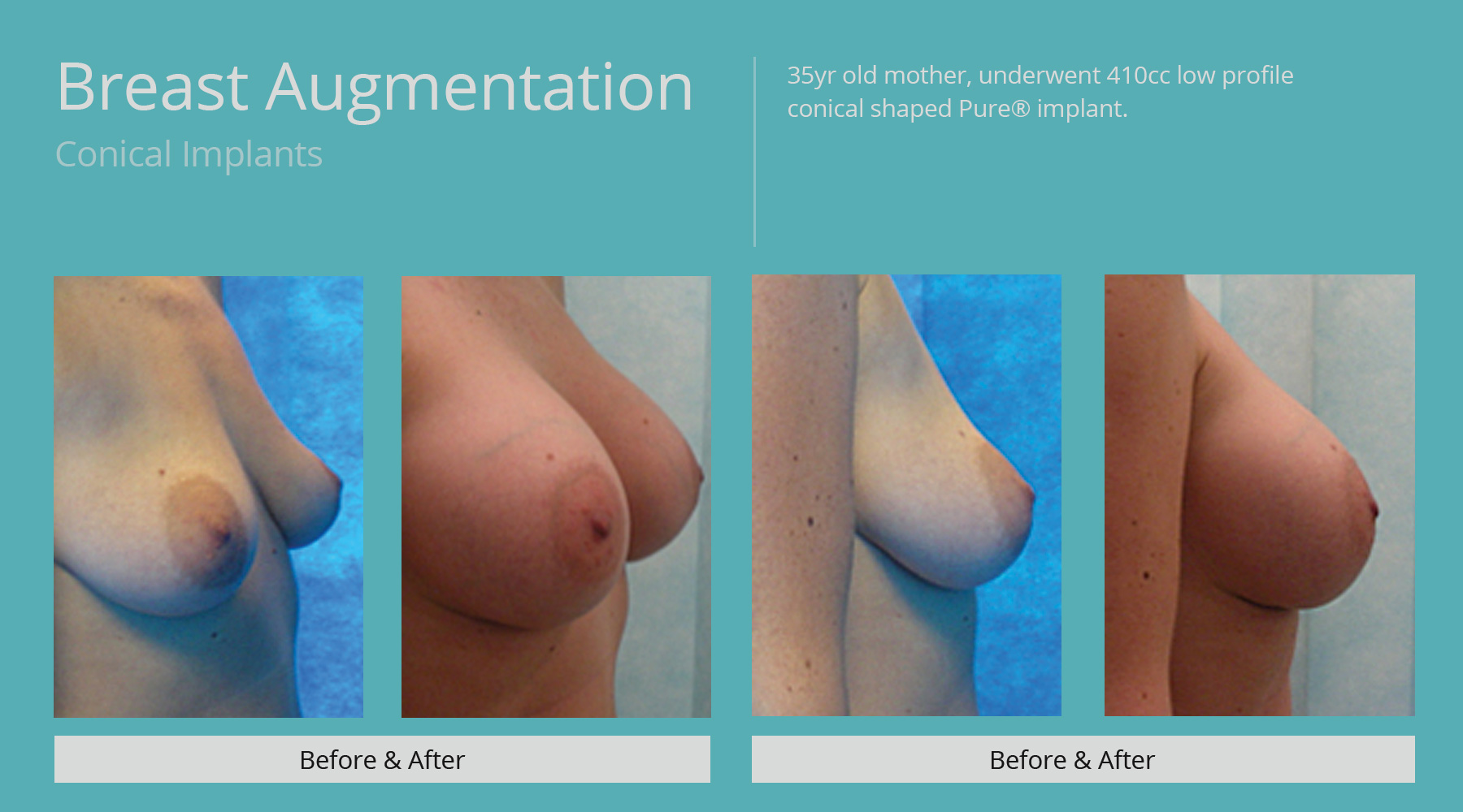 Conical-implants-Gallery-28